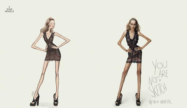 18. Sen bir eskiz değilsin. Anoreksi'ye hayır de.